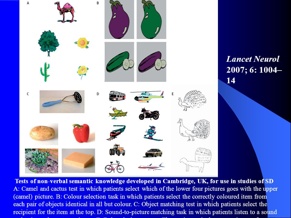 Lancet Neurol 2007; 6: 1004–14 Tests of non-verbal semantic knowledge developed in Cambridge, UK, for use in studies of SD.