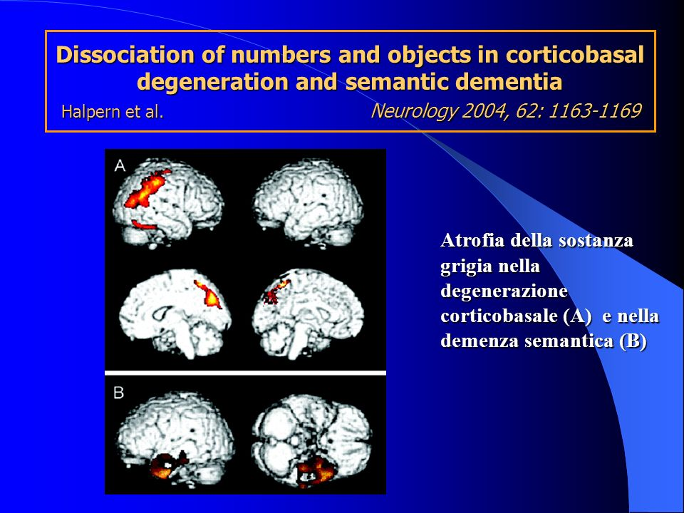 Dissociation of numbers and objects in corticobasal degeneration and semantic dementia Halpern et al. Neurology 2004, 62:
