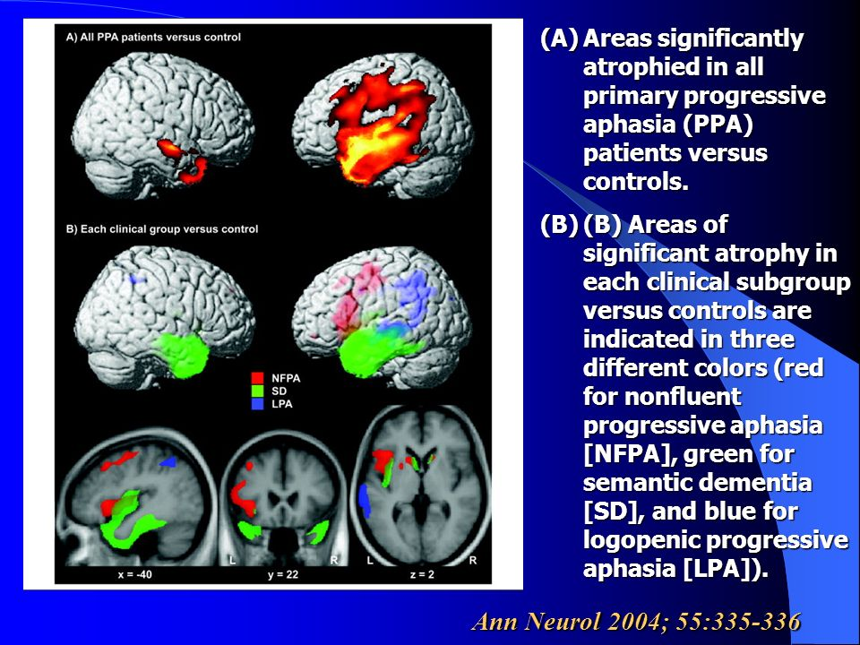 Areas significantly atrophied in all primary progressive aphasia (PPA) patients versus controls.