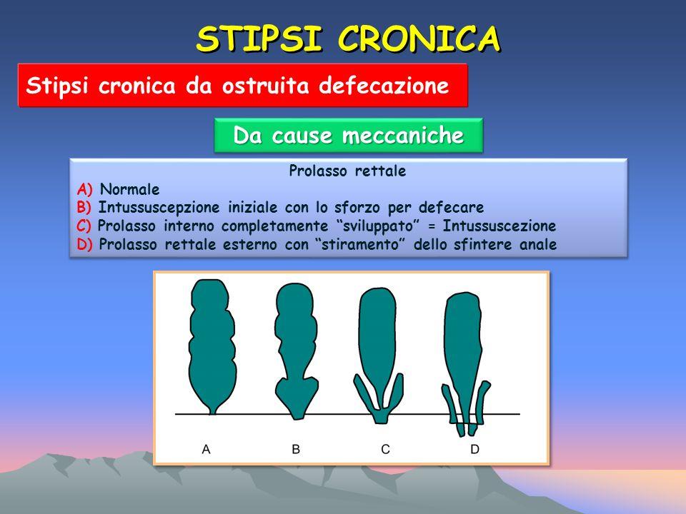 STIPSI CRONICA Stipsi cronica da ostruita defecazione