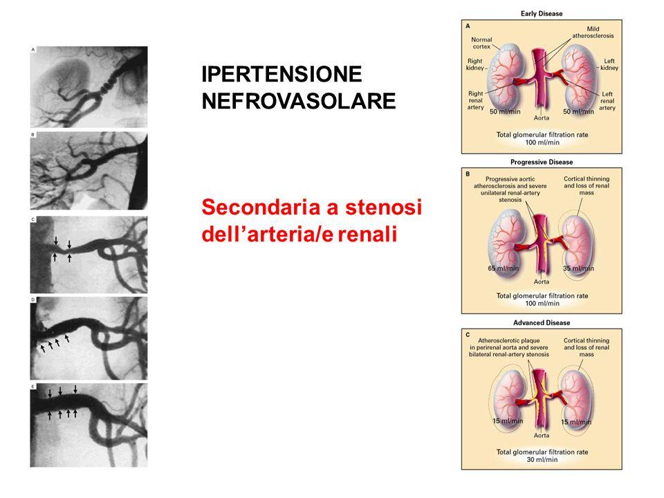 IPERTENSIONE NEFROVASOLARE Secondaria a stenosi dell'arteria/e renali