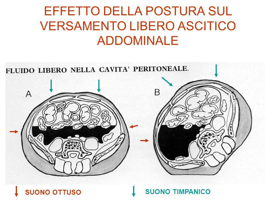 EFFETTO DELLA POSTURA SUL VERSAMENTO LIBERO ASCITICO ADDOMINALE