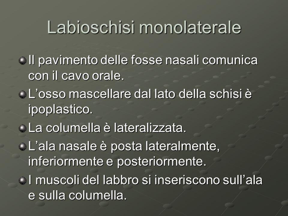 Labioschisi monolaterale