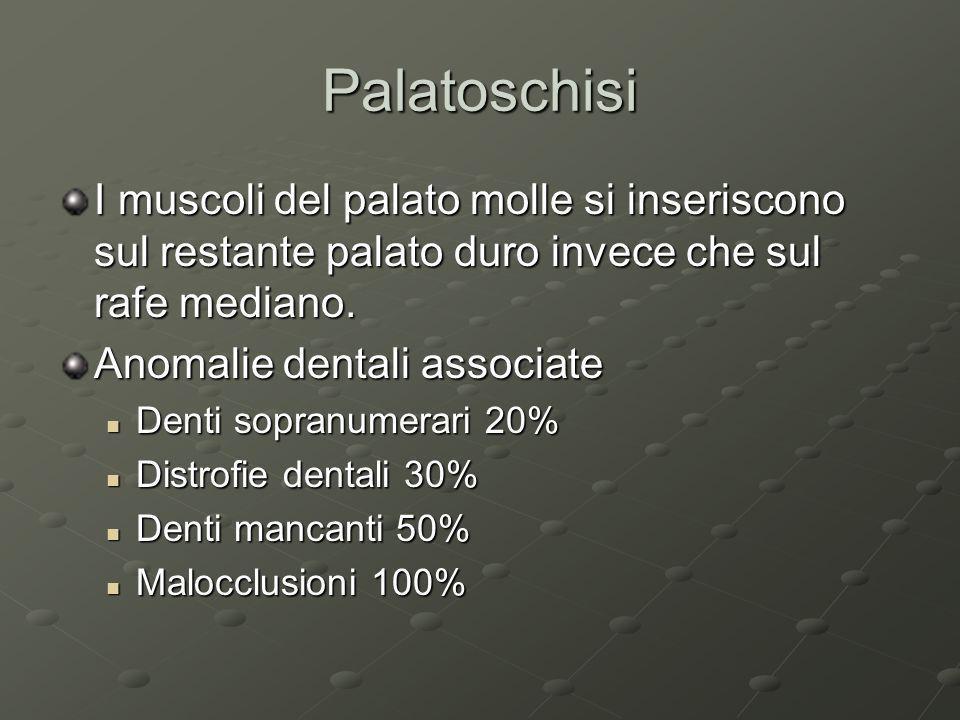 Palatoschisi I muscoli del palato molle si inseriscono sul restante palato duro invece che sul rafe mediano.