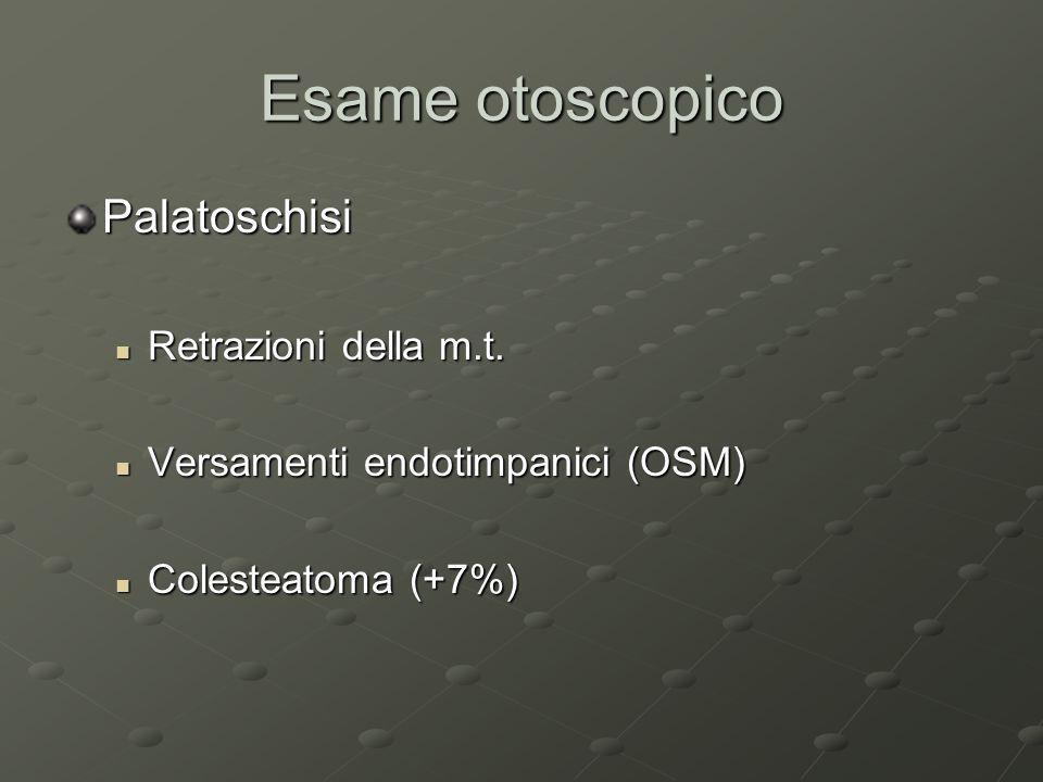 Esame otoscopico Palatoschisi Retrazioni della m.t.