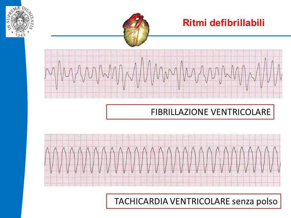 Ritmi defibrillabili FIBRILLAZIONE VENTRICOLARE TACHICARDIA VENTRICOLARE senza polso