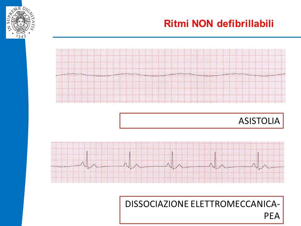 Ritmi NON defibrillabili