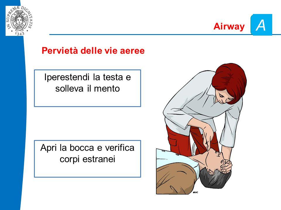 A Airway Pervietà delle vie aeree