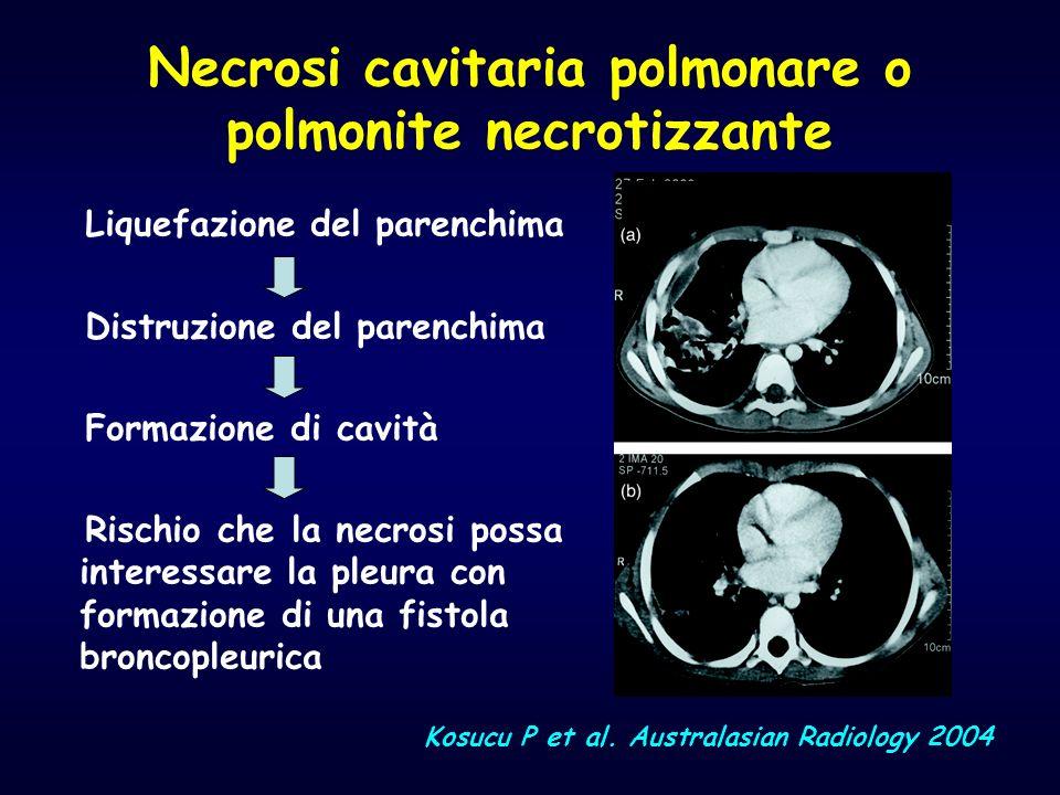 Necrosi cavitaria polmonare o polmonite necrotizzante
