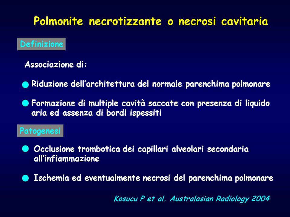 Polmonite necrotizzante o necrosi cavitaria