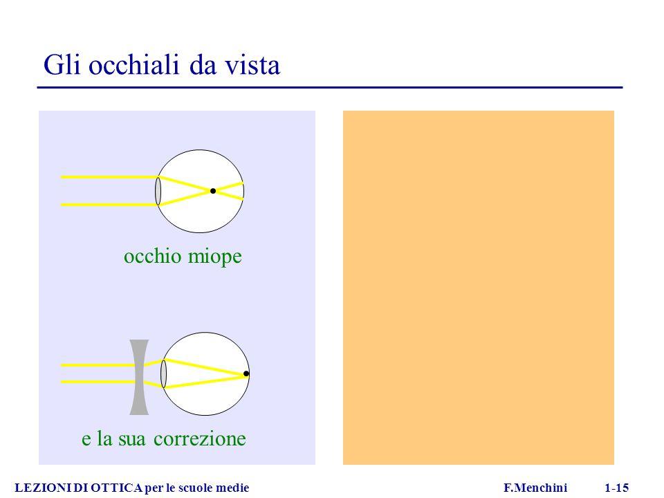 Gli occhiali da vista occhio miope e la sua correzione
