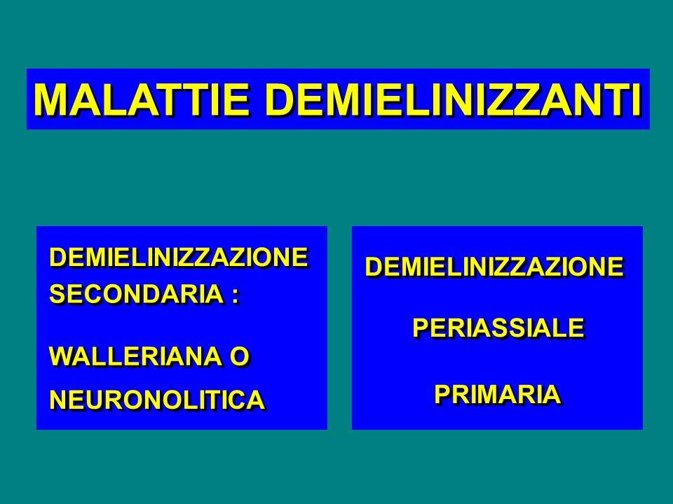 MALATTIE DEMIELINIZZANTI