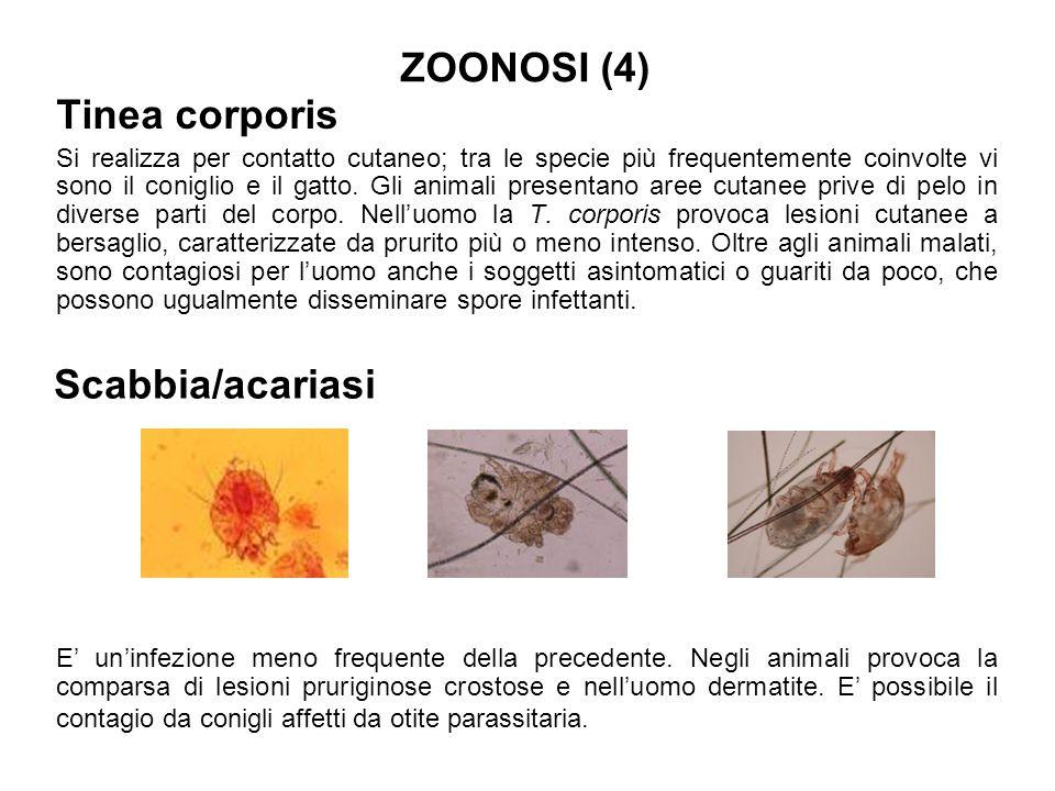 ZOONOSI (4) Tinea corporis Scabbia/acariasi