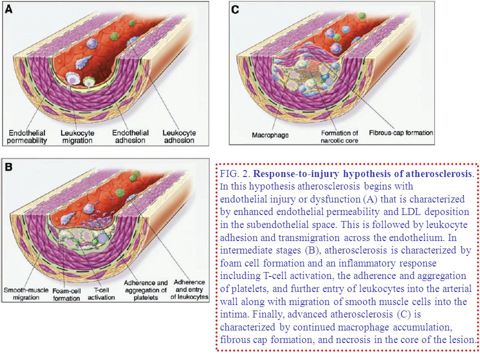 FIG. 2. Response-to-injury hypothesis of atherosclerosis.