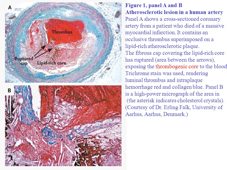 Figure 1, panel A and BAtherosclerotic lesion in a human artery. Panel A shows a cross-sectioned coronary.