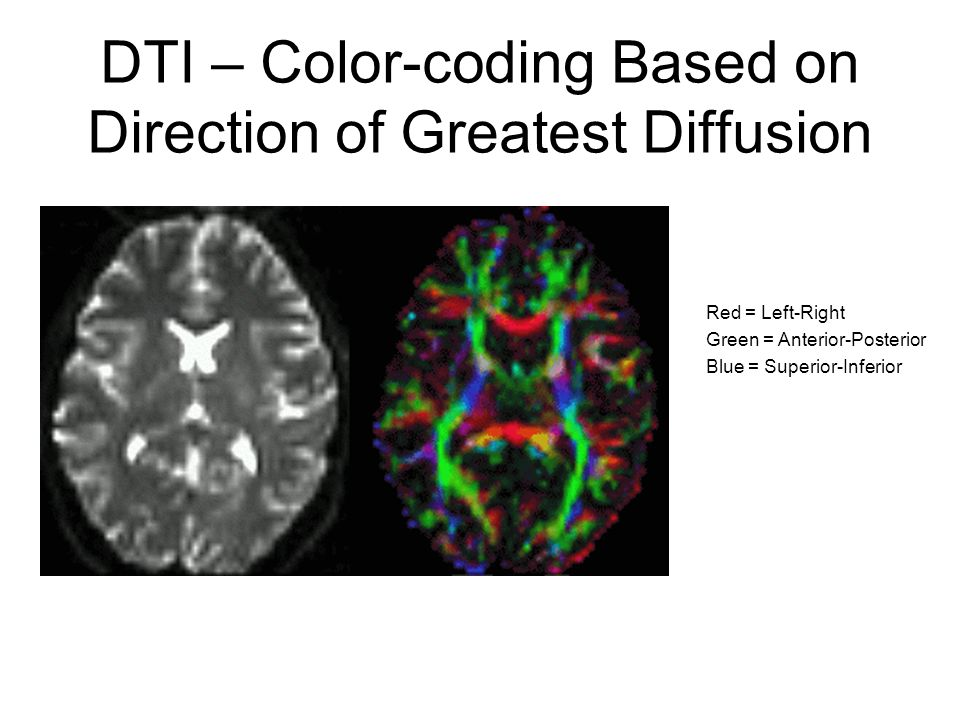 DTI – Color-coding Based on Direction of Greatest Diffusion