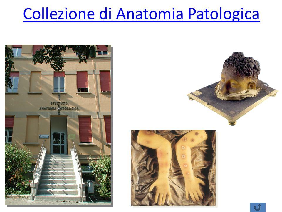 Collezione di Anatomia Patologica