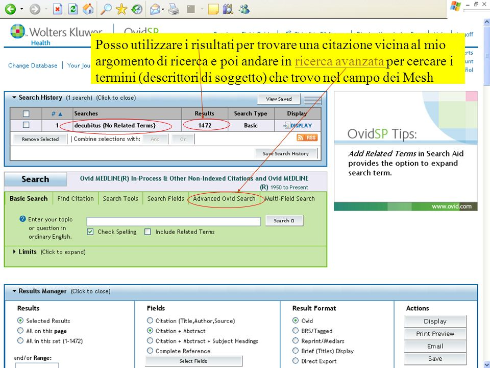 Posso utilizzare i risultati per trovare una citazione vicina al mio argomento di ricerca e poi andare in ricerca avanzata per cercare i termini (descrittori di soggetto) che trovo nel campo dei Mesh