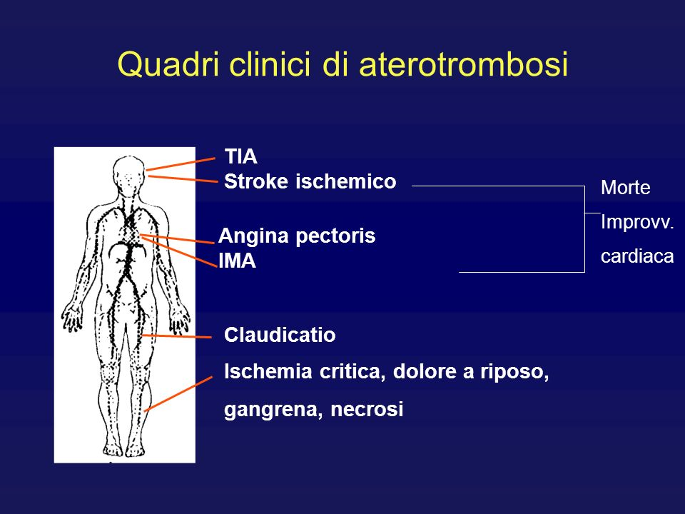 Quadri clinici di aterotrombosi