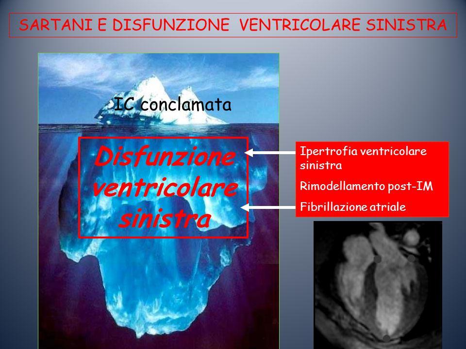 Disfunzione ventricolaresinistra