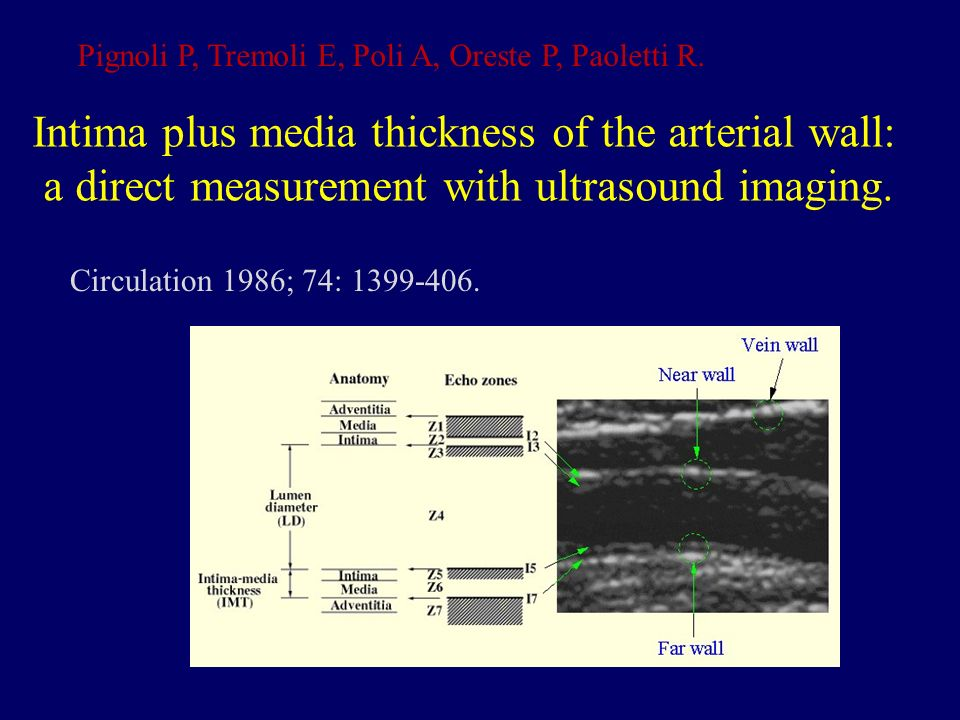 Intima plus media thickness of the arterial wall: