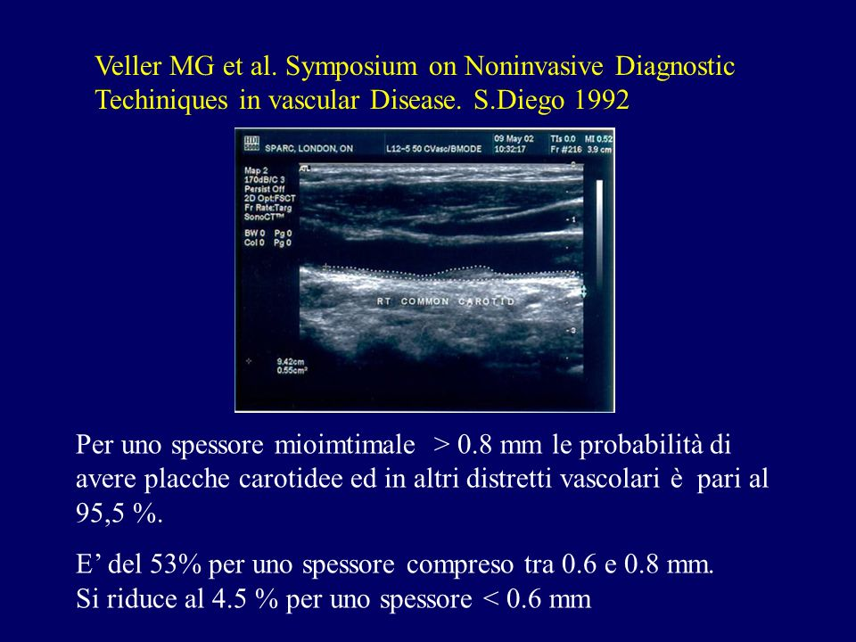 Veller MG et al. Symposium on Noninvasive Diagnostic Techiniques in vascular Disease. S.Diego 1992