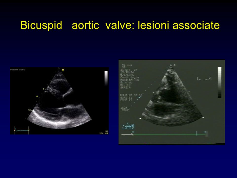 Bicuspid aortic valve: lesioni associate