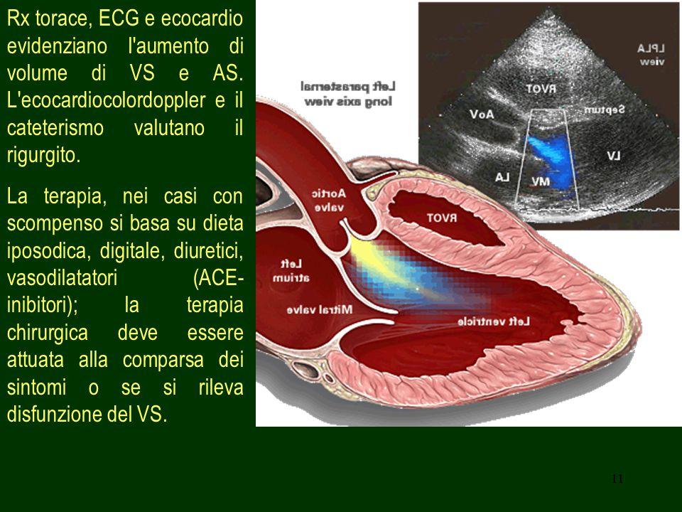 Rx torace, ECG e ecocardio evidenziano I aumento di volume di VS e AS