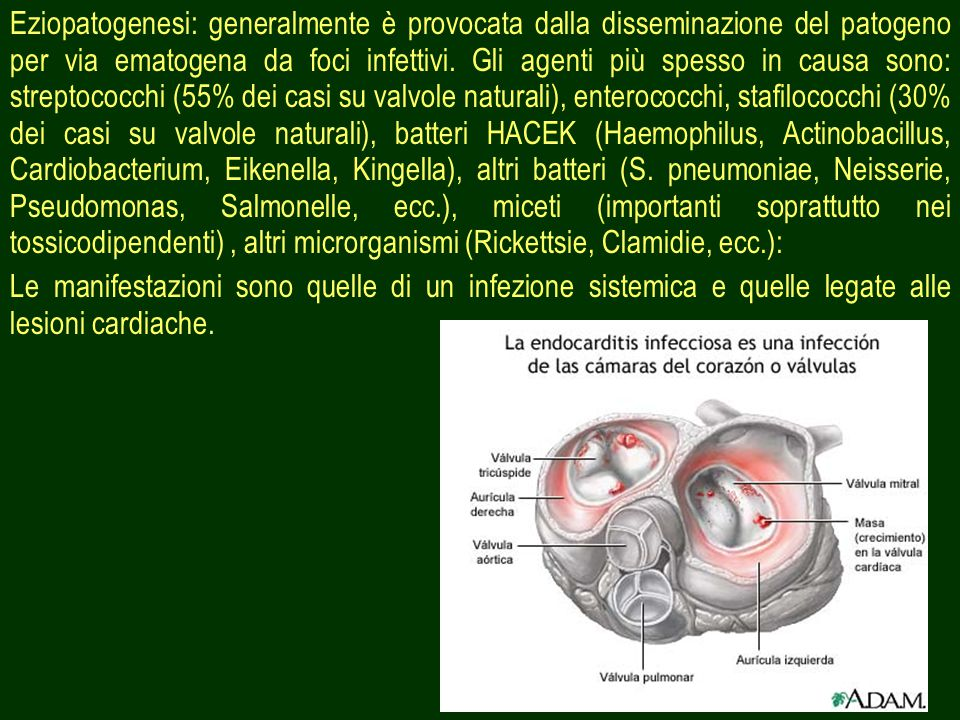 Eziopatogenesi: generalmente è provocata dalla disseminazione del patogeno per via ematogena da foci infettivi. Gli agenti più spesso in causa sono: streptococchi (55% dei casi su valvole naturali), enterococchi, stafilococchi (30% dei casi su valvole naturali), batteri HACEK (Haemophilus, Actinobacillus, Cardiobacterium, Eikenella, Kingella), altri batteri (S. pneumoniae, Neisserie, Pseudomonas, Salmonelle, ecc.), miceti (importanti soprattutto nei tossicodipendenti) , altri microrganismi (Rickettsie, Clamidie, ecc.):
