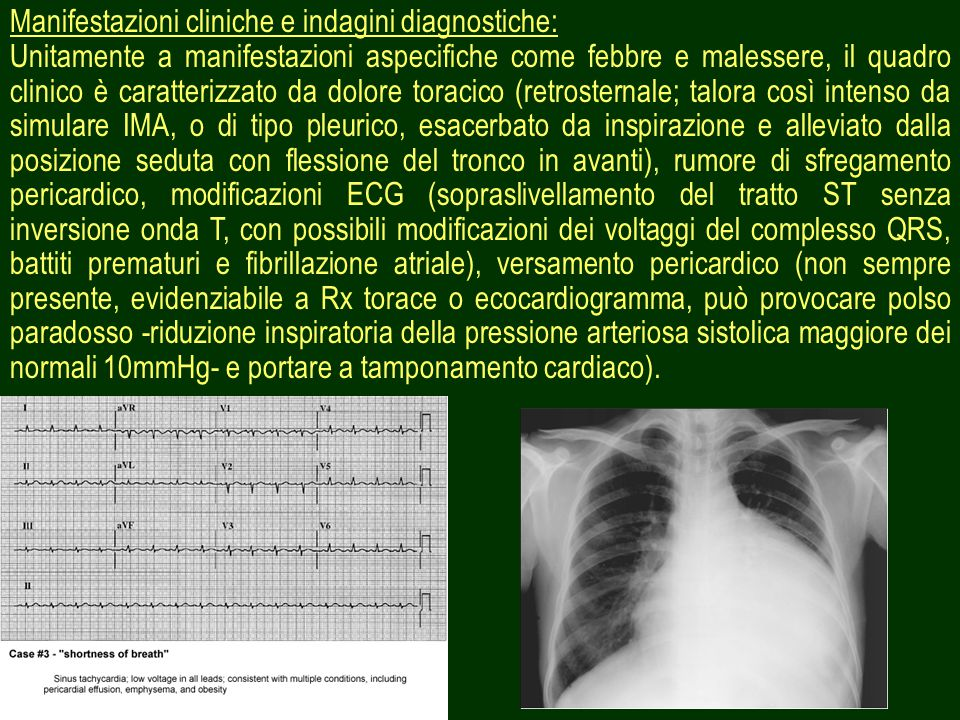 Manifestazioni cliniche e indagini diagnostiche: