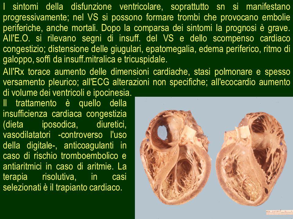 I sintomi della disfunzione ventricolare, soprattutto sn si manifestano progressivamente; nel VS si possono formare trombi che provocano embolie periferiche, anche mortali. Dopo la comparsa dei sintomi Ia prognosi è grave. AII E.O. si rilevano segni di insuff. del VS e dello scompenso cardiaco congestizio; distensione delle giugulari, epatomegalia, edema periferico, ritmo di galoppo, soffi da insuff.mitralica e tricuspidale.