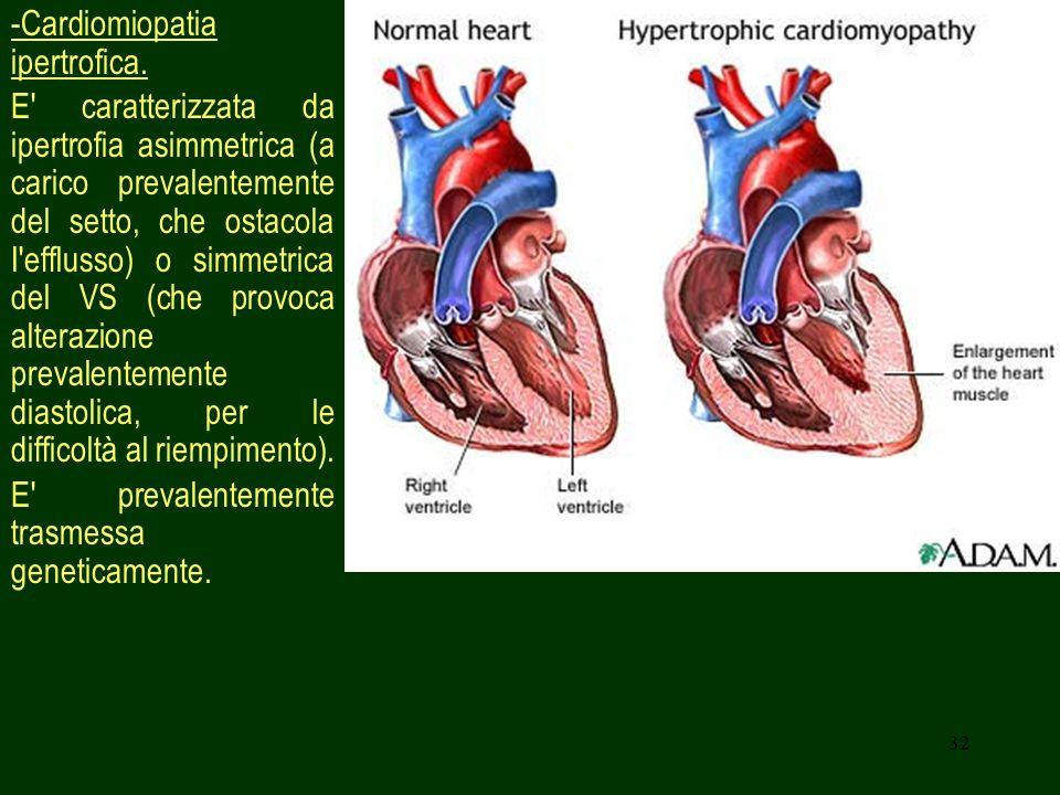 -Cardiomiopatia ipertrofica.