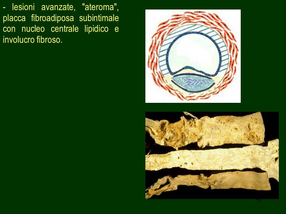- lesioni avanzate, ateroma , placca fibroadiposa subintimale con nucleo centrale lipidico e involucro fibroso.