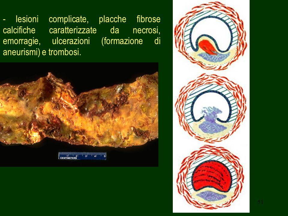- lesioni complicate, placche fibrose calcifiche caratterizzate da necrosi, emorragie, ulcerazioni (formazione di aneurismi) e trombosi.