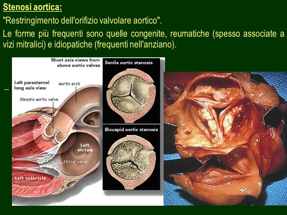 Stenosi aortica: Restringimento dell orifizio valvolare aortico .