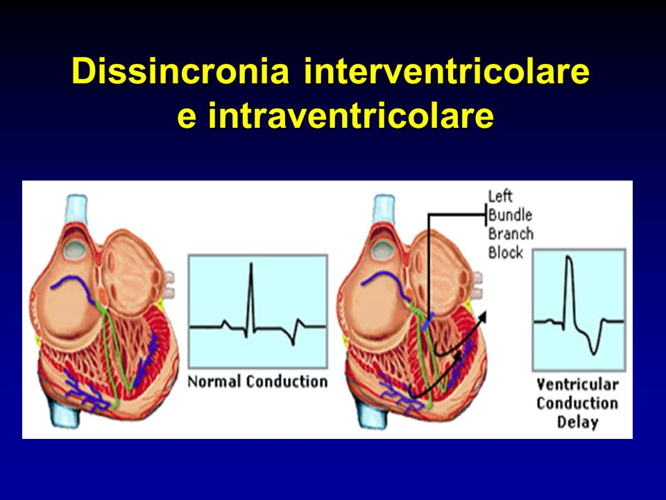 Dissincronia interventricolare e intraventricolare