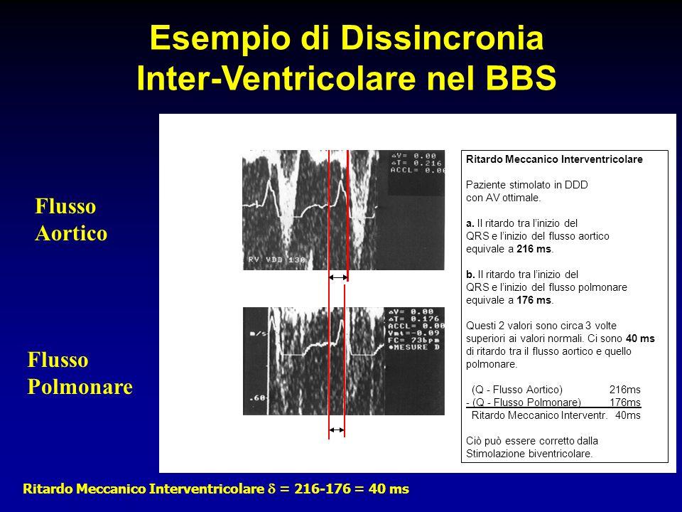 Esempio di Dissincronia Inter-Ventricolare nel BBS