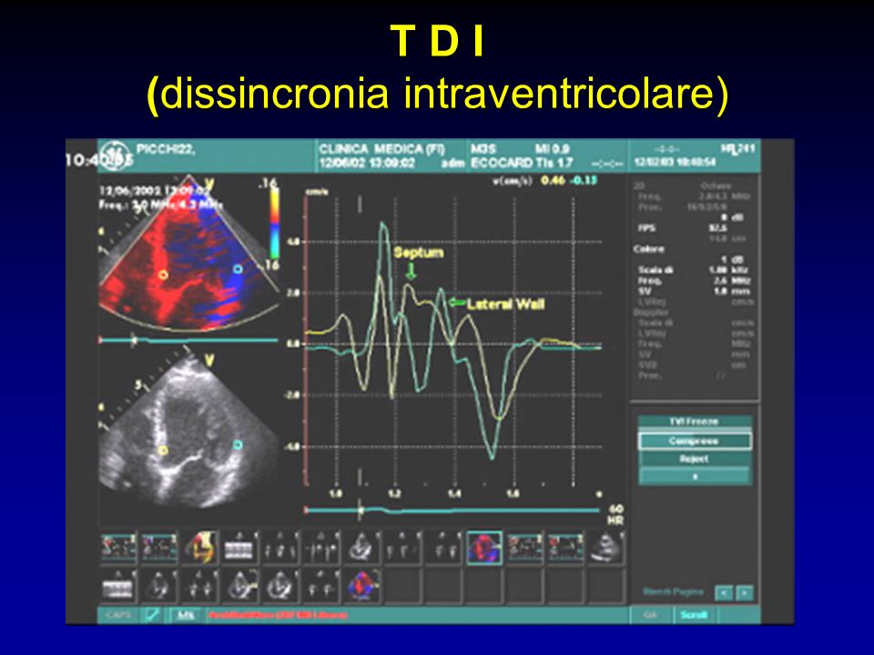 T D I (dissincronia intraventricolare)