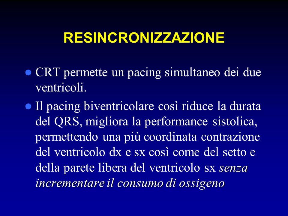 RESINCRONIZZAZIONE CRT permette un pacing simultaneo dei due ventricoli.