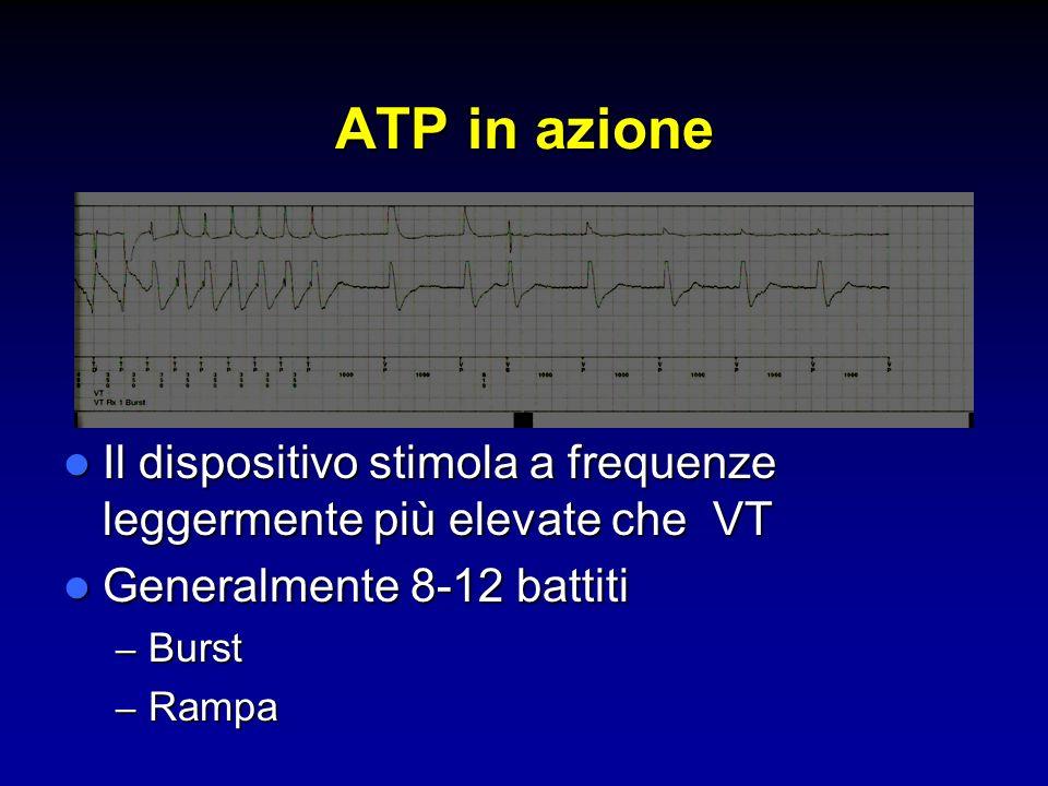 ATP in azione Il dispositivo stimola a frequenze leggermente più elevate che VT. Generalmente 8-12 battiti.