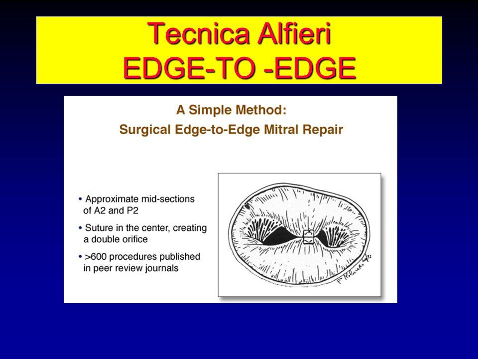 Tecnica Alfieri EDGE-TO -EDGE