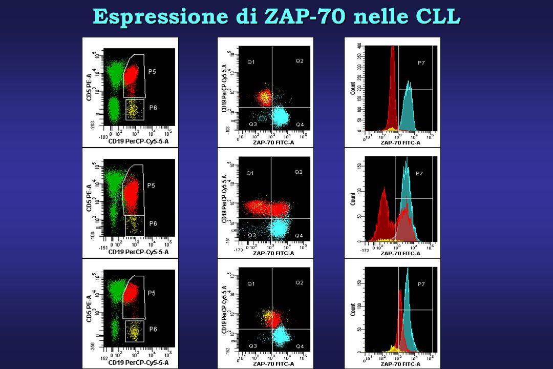 Espressione di ZAP-70 nelle CLL