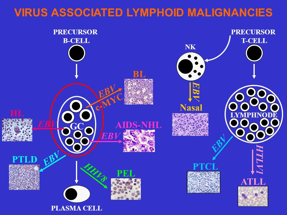 VIRUS ASSOCIATED LYMPHOID MALIGNANCIES