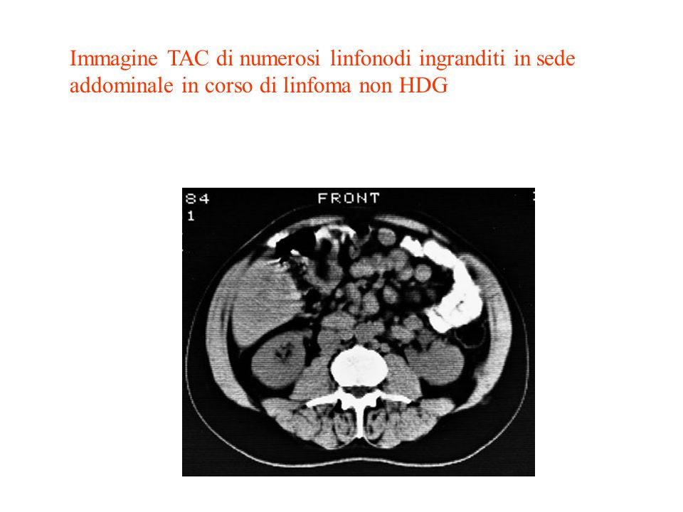 Immagine TAC di numerosi linfonodi ingranditi in sede addominale in corso di linfoma non HDG