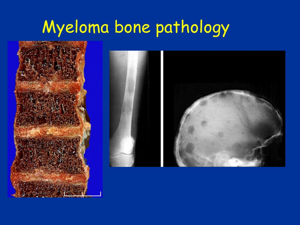 Myeloma bone pathology