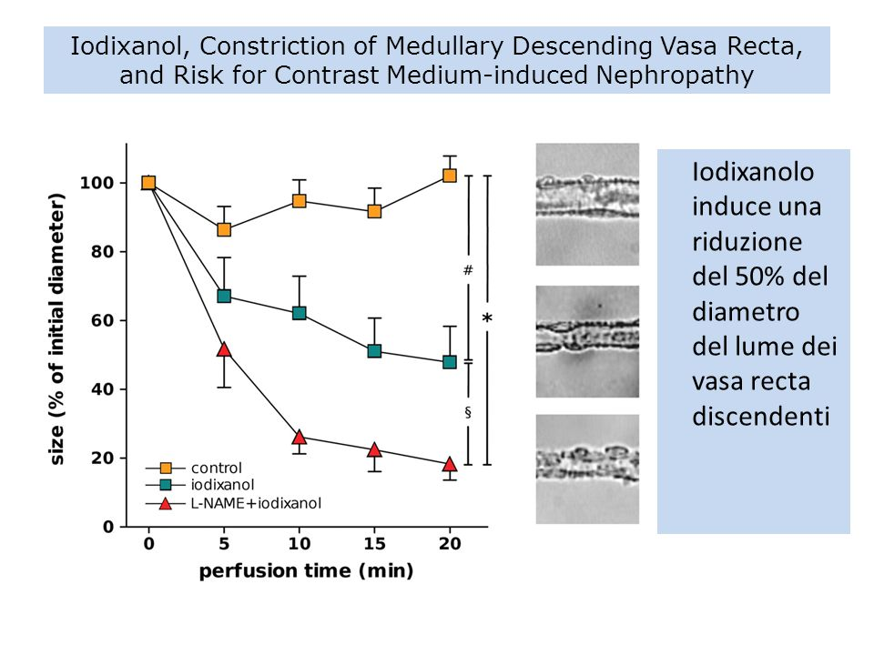 Iodixanol, Constriction of Medullary Descending Vasa Recta, and Risk for Contrast Medium-induced Nephropathy
