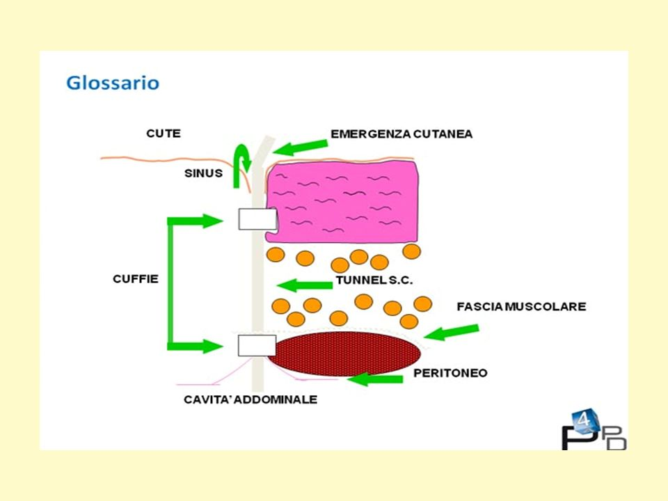 Nella diapositiva viene spiegato il glossario di alcuni reperti relativi al catetere peritoneale: Emergenza cutanea o exit site: è il punto di uscita del catetere peritoneale.