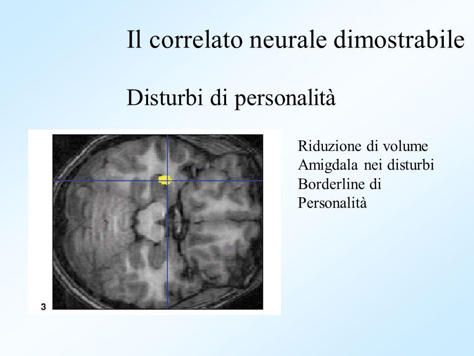 Il correlato neurale dimostrabile