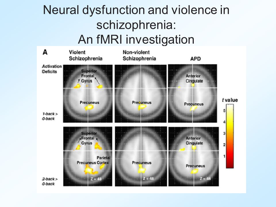 Neural dysfunction and violence in schizophrenia: An fMRI investigation