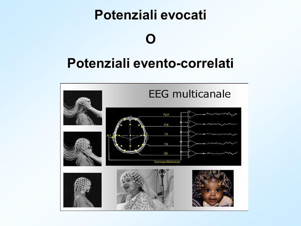 Potenziali evento-correlati